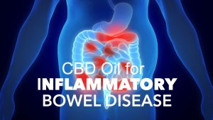 cbd oil for inflammatory bowel disease
